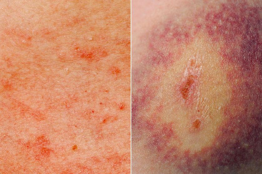 piros folt a bőrrák fényképen vörös foltok a talpon viszketnek