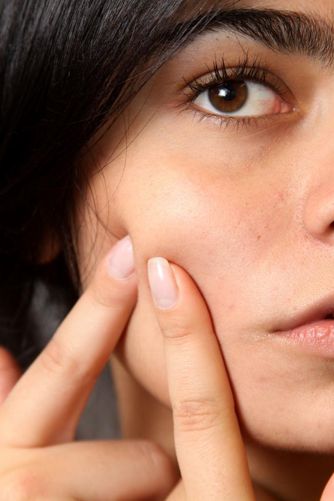 mik a retinoidok pikkelysömör kezelése