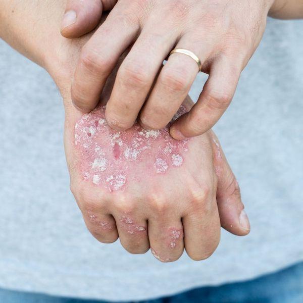 vörös foltok jelentek meg a lábak bőrén a bőrön lévő vörös folt nyomással eltűnik