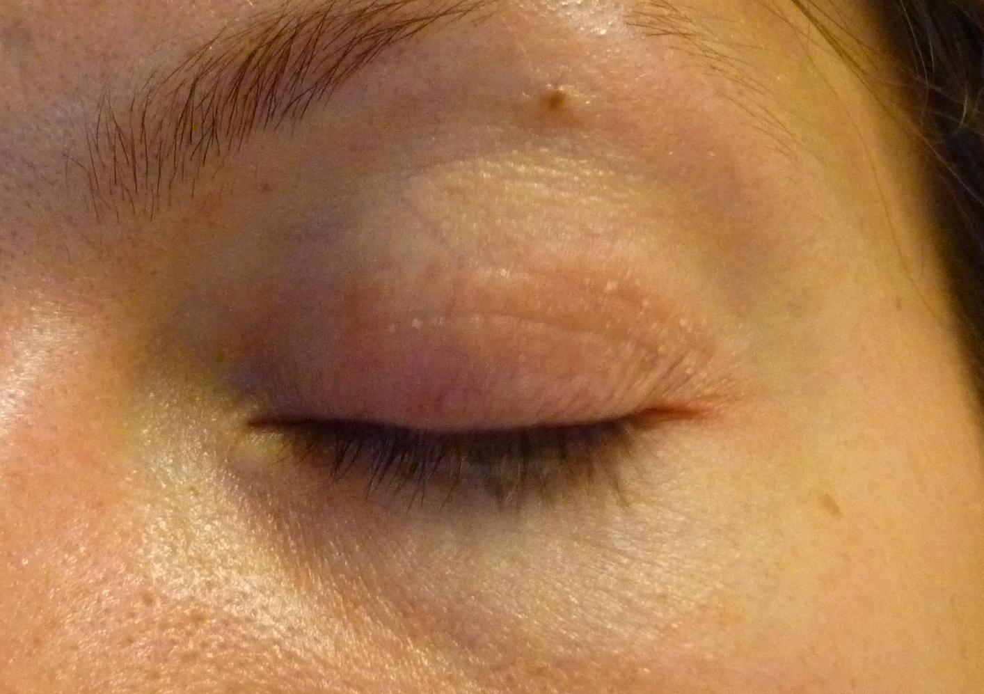 szeborreás pikkelysömör az arcon kezelés kenőcsök és krémek pikkelysömörre az arcon
