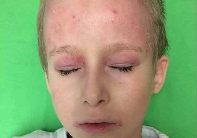 vörös foltok ugrottak fel és viszketnek az arcon újdonságok a pikkelysömör kezelésében 2020
