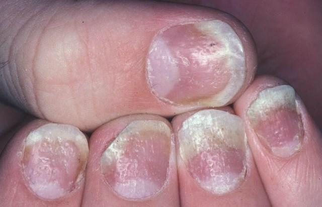 hogyan lehet teljesen megszabadulni a pikkelysmrtl vörös foltok jelentek meg a has bőrén