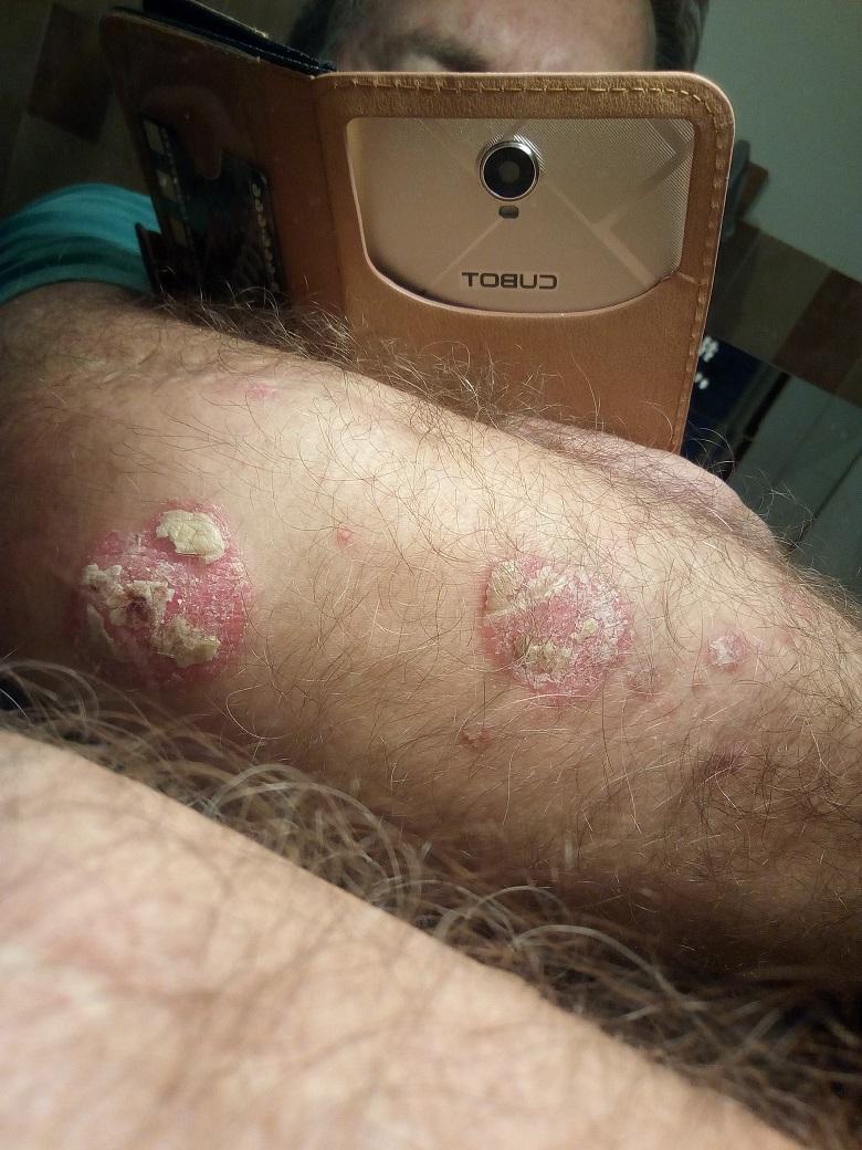 linline pikkelysömör kezelés vélemények a tenyér pikkelysömörének gyógyítása