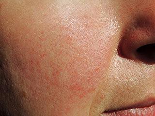 vörös foltok az arcon és a homlokán pikkelysömör kezelése köményolaj