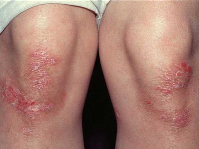 piros durva foltok a lábakon fotó