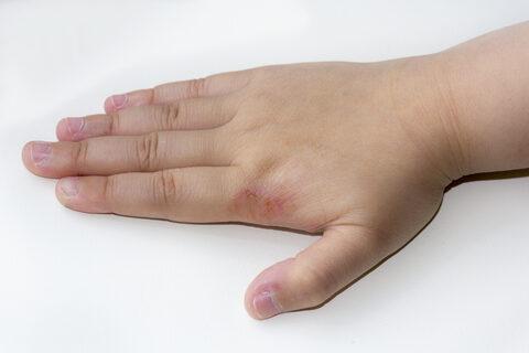 pikkelysömör kezelése tioszulfátokkal