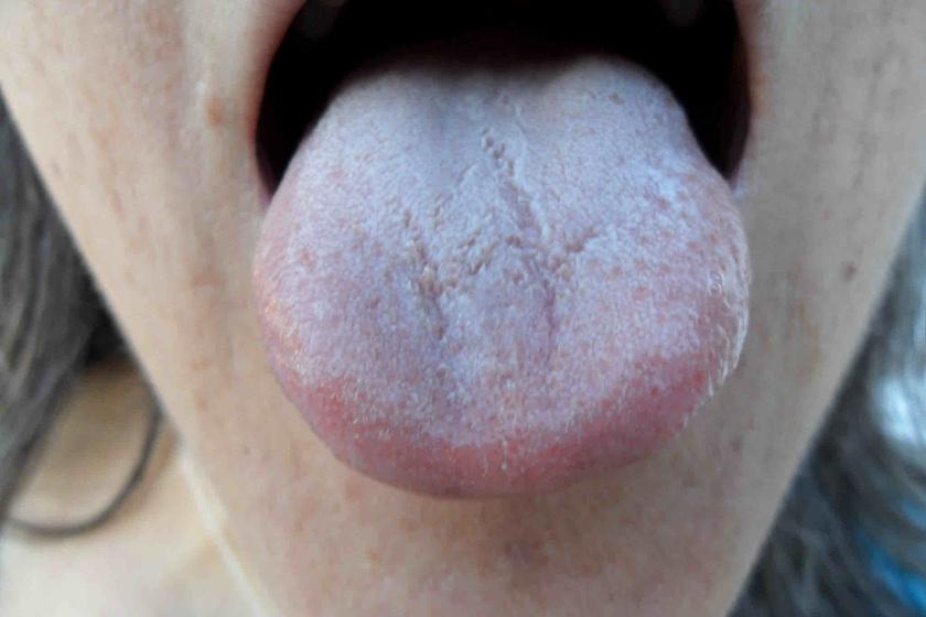 vörös foltok a nyelven mi az, hogyan kell kezelni