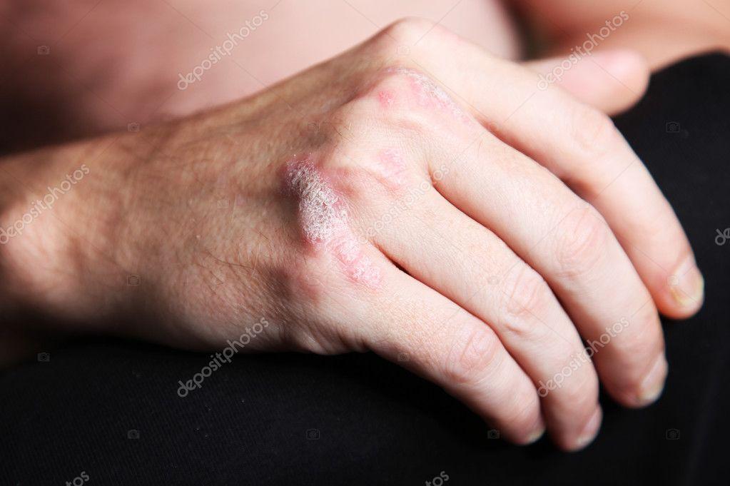 a vörös foltok megjelenése a lábakon az oka belek vörös foltok az arcon