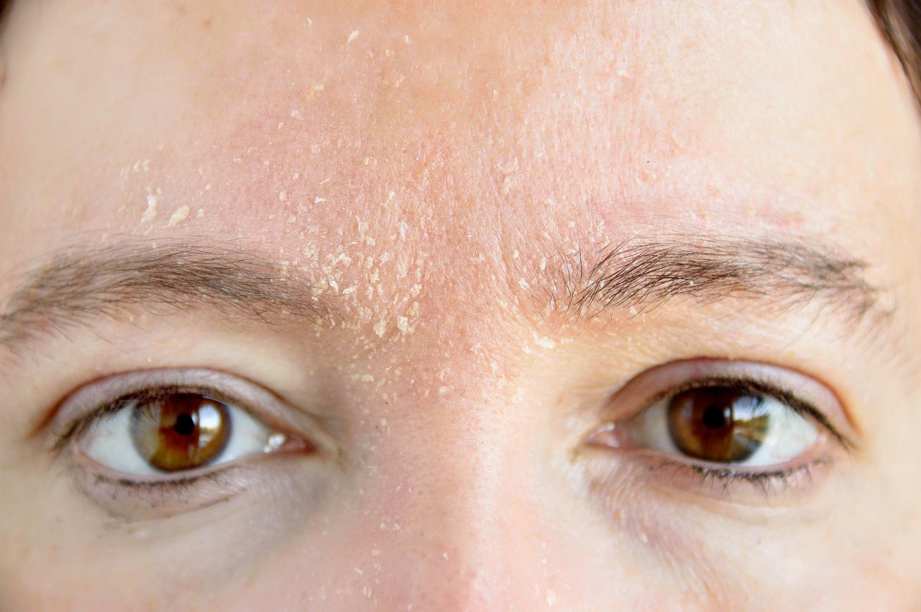 vörös foltok a homlokon pikkelyesek és viszketőek hogyan kell kezelni a pikkelysmrt a testen felülvizsgálatok