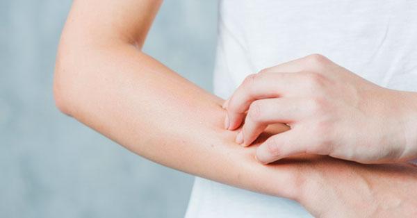 a kezén viszket egy nagy vörös folt anyós nyelvének pikkelysömör kezelése