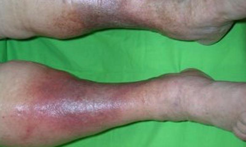 vörös foltok a bokák körüli lábakon