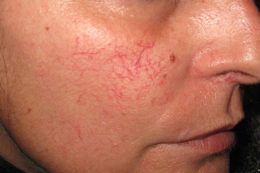 kenőcs az arc piros foltjai fotó pikkelysömör otthoni kezelse gyorsan