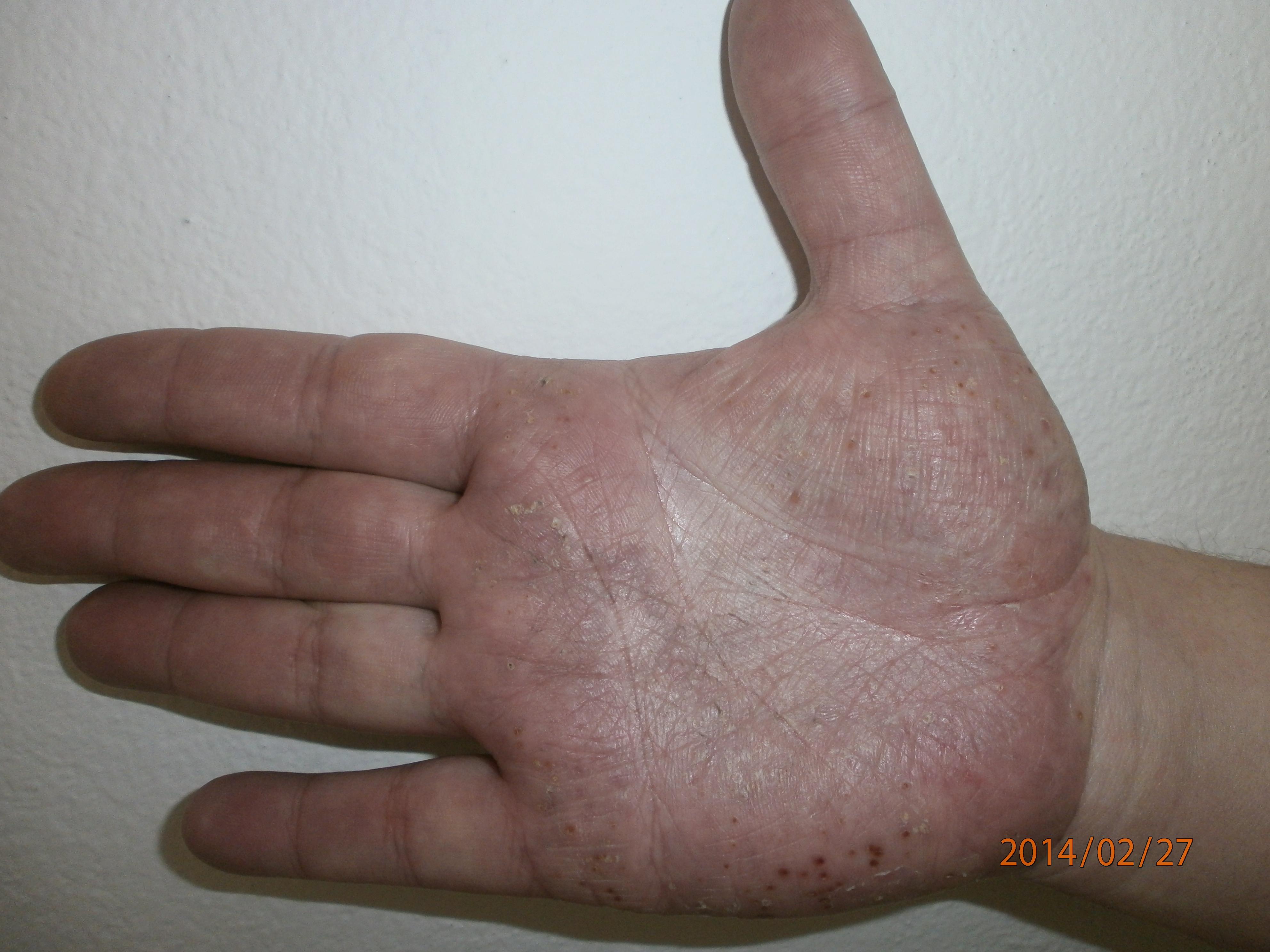 a tenyér pikkelysömörének kezelése kenőcsökkel