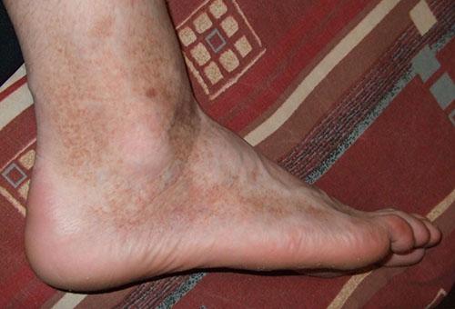 a lábakat vörös foltok borítják a napon kiütés az arcon vörös foltok formájában, viszkető felnőtteknél
