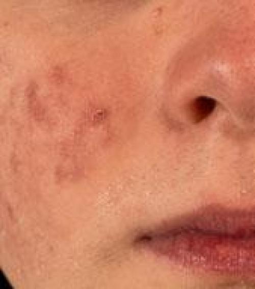 vörös foltok az arcon a száj körül fotó