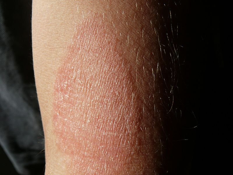 görögdinnye pikkelysömör kezelés vélemények nagy vörös foltok a lábakon