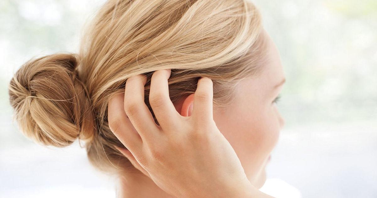 a fejbőr pikkelysömörének legjobb gyógymódja vörös foltok az arcon rosaceás fotó