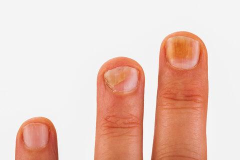vörös korfoltok a kezeken a lábán lévő vörös foltok kezelése
