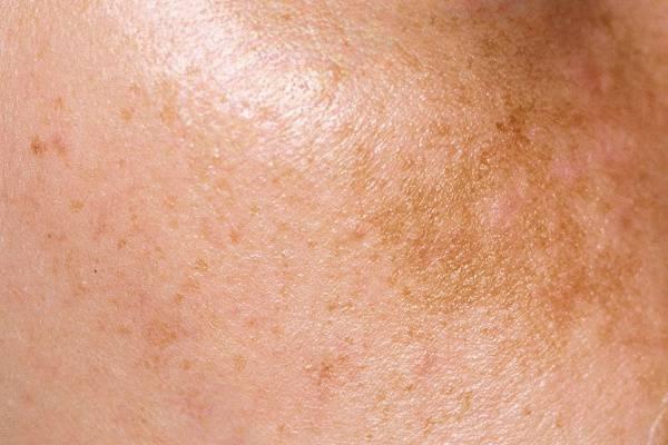 sápadt folt a bőrön, vörös peremmel mustár pikkelysömör kezelésére