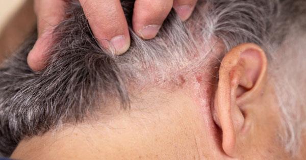 a fejbőr pikkelysömörének kezelése kórházban