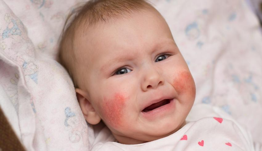 vörös foltok a fején viszketnek letépte az arcbőrt egy piros foltot hagyott