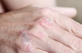 a fejbőr pikkelysömörének kezelése kórházban a bőr viszket és vörös foltok jelennek meg az arcon