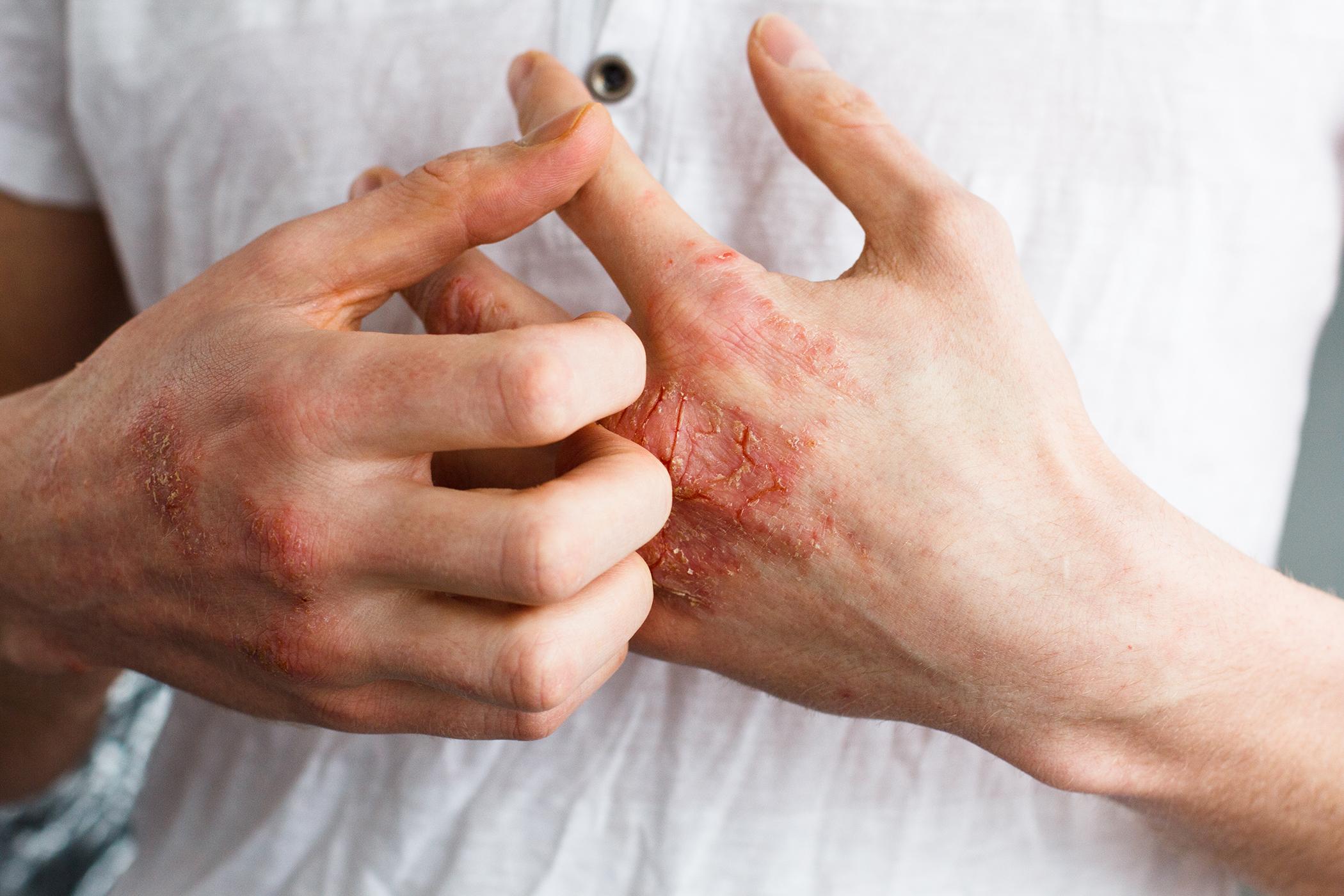 vörös foltok a hason, pikkelyes foltok fájó ujjbegyek vörös foltok