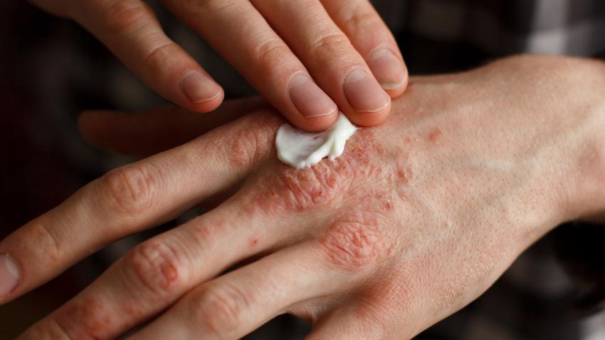 sima vörös folt a kezén pikkelysömör kezelése orvosával nona