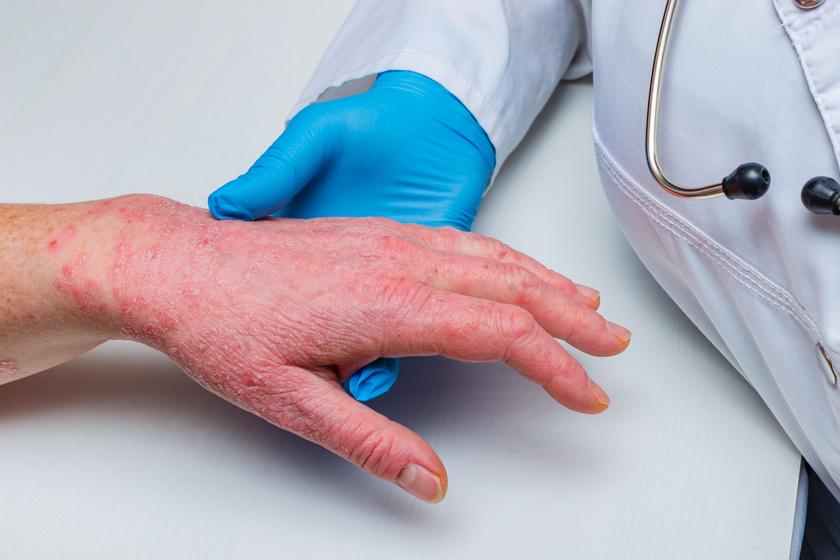 hogyan lehet otthon meghatározni a pikkelysömör pikkelysömör tüneteinek kezelése és kezelése népi gyógymódokkal