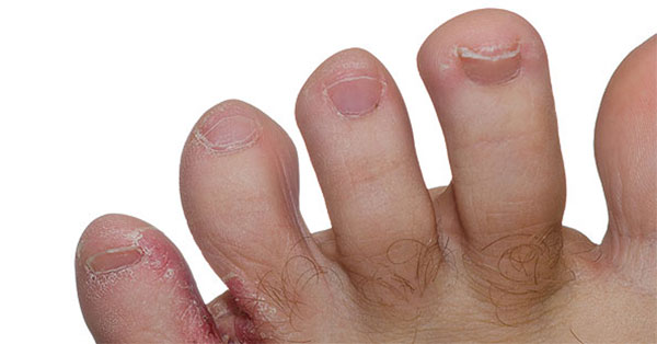 mi a pikkelysömör és hogyan lehet gyógyítani pikkelysömör kezelése infliximab