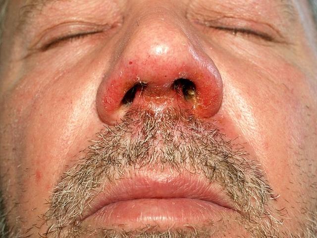 vörös foltok pikkelyesek a száj közelében