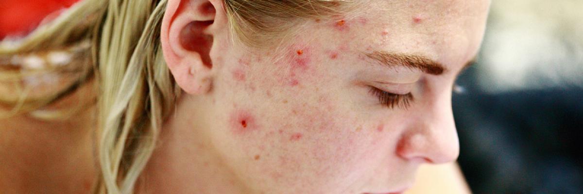 vörös anyajegyet okozhat az arcon