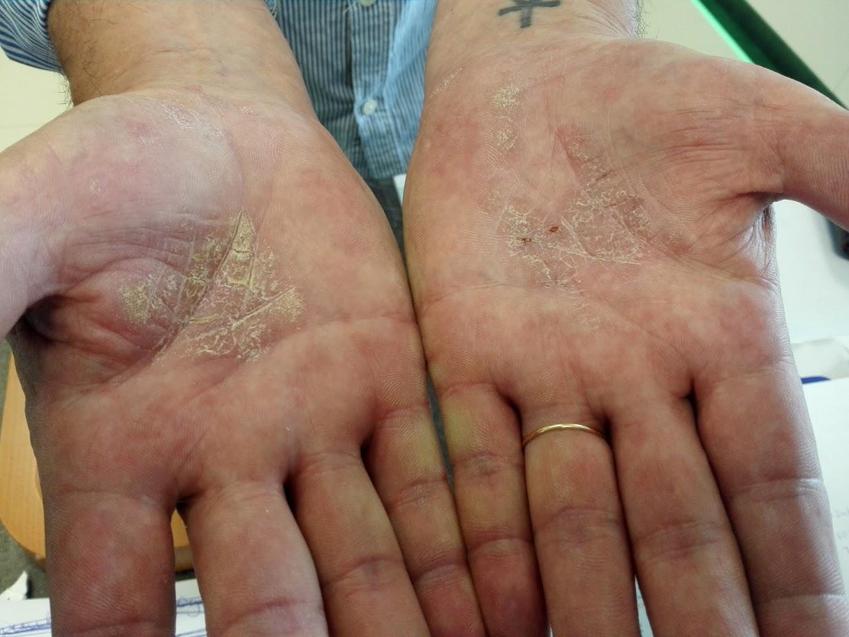 a fürdés után az arcát vörös foltok borítják holt tengeri kozmetikumok pikkelysömör kezelésére