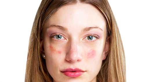 vörös foltok az arcon hasi fájdalom