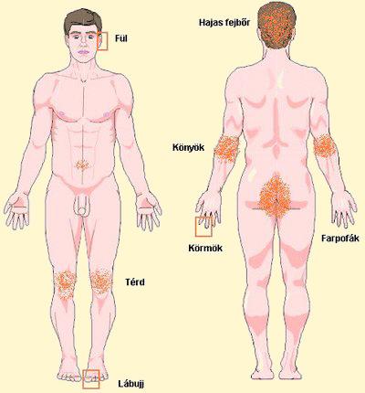 vörös foltok jelentek meg a lábakon, hámló és viszkető vörös foltok a gyomor stresszén
