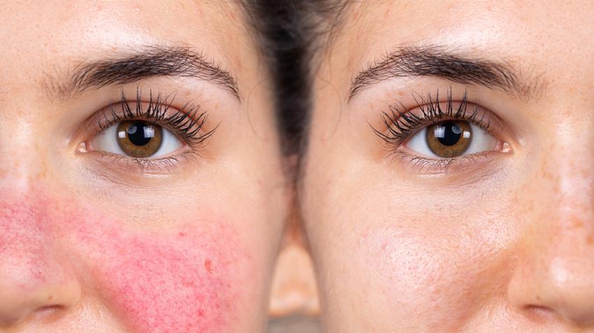 az arcbőr egyenetlen, vörös foltokkal a legkorszerűbb gyógyszerek pikkelysömörhöz