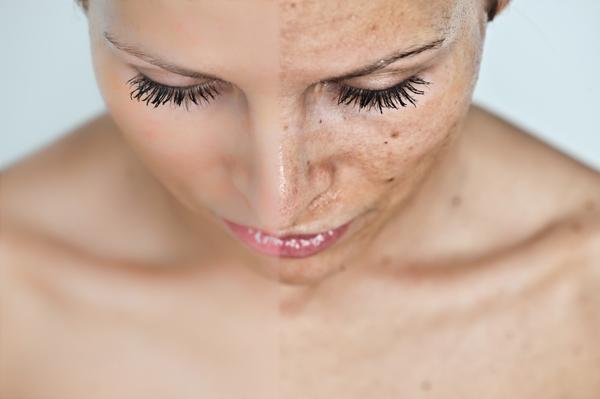 Milyen betegségre utalhat az éjszakai bőrviszketés?