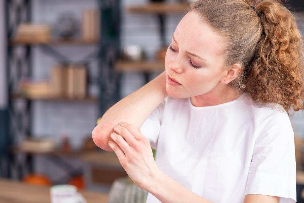 nem szokásos pikkelysömör kezelés kenőcs alkalmaz pikkelysömör a fejbrn