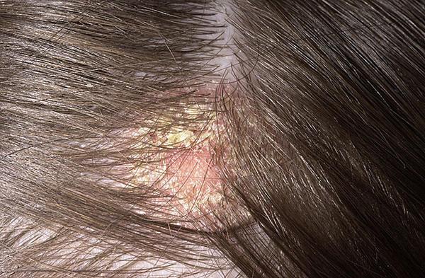 vörös viszkető foltok a fejbőrön a haj alatt