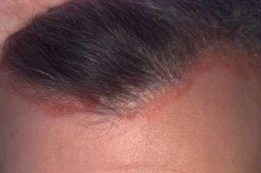 homlok psoriasis kezelse shea vaj pikkelysömör kezelése