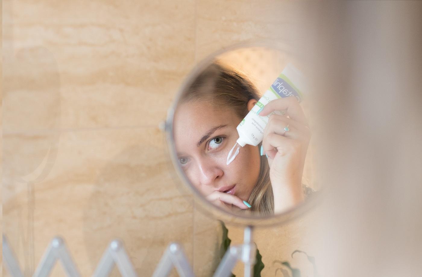pikkelysömör fotó a kezdeti stádiumú kezelés a fején