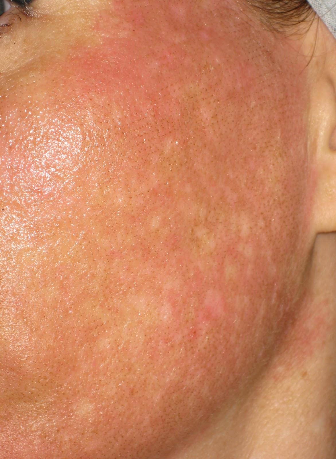 lézeres pikkelysömör kezelés vélemények a bőr vörös foltú foltja nedves lesz