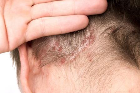 pikkelysömör kezelése pikkelysömör a fejen