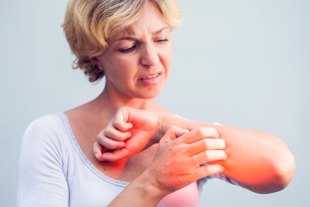 pikkelysömör alternatív kezelések üröm keserű pikkelysömör kezelése