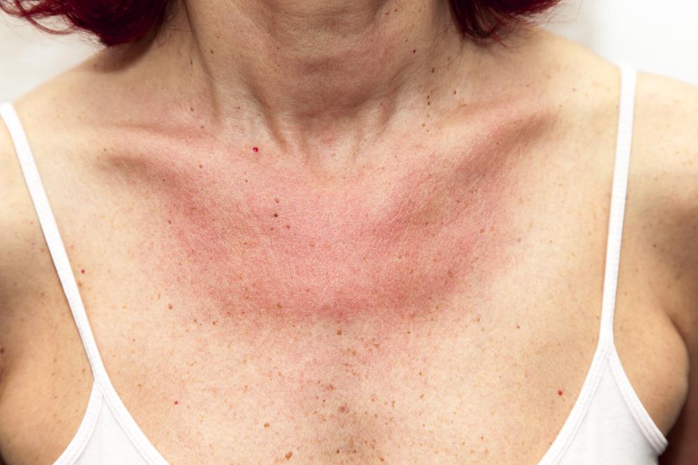 hónalj alatt vörös foltok és viszketés