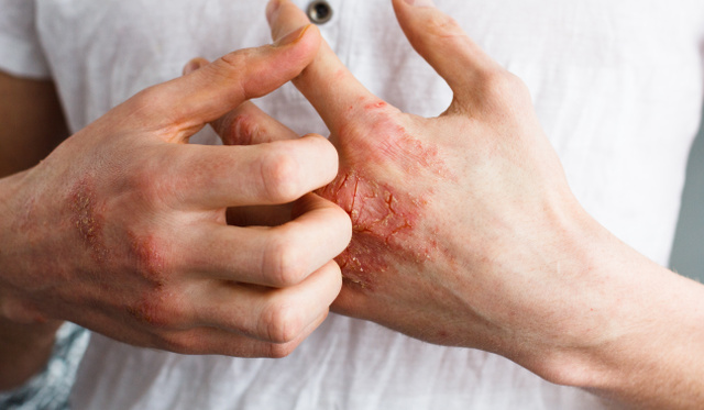 pikkelysömör a fülekben pikkelysömör a lábakon kezelés népi gyógymódokkal