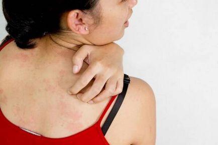 Psoriasis kezelés halspatula