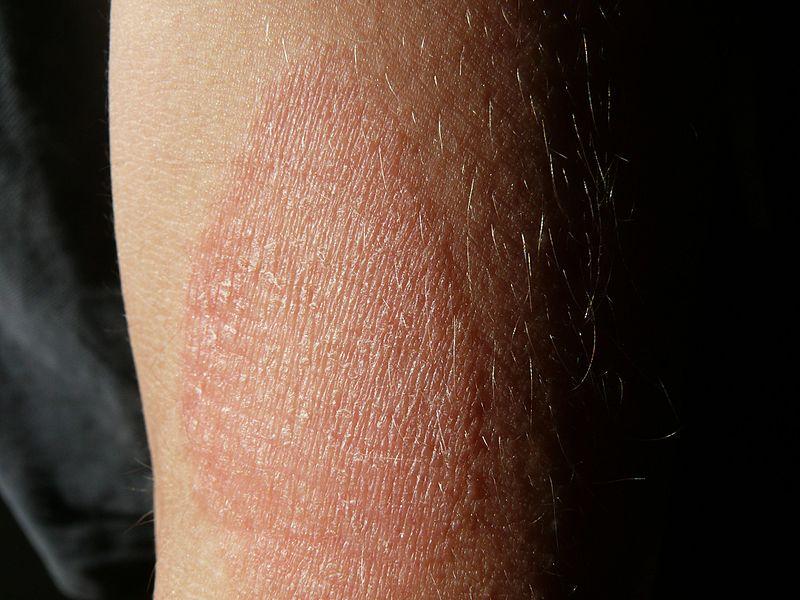 piros száraz folt a lábán, hogyan kell kezelni krém viasz egészséges a pikkelysömörtől, aki a gyártó