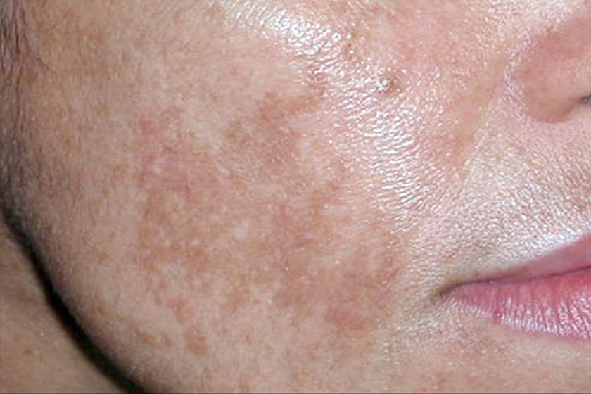 hogyan lehet elrejteni a vörös foltokat a bőrön kritériumok a pikkelysömör kezelésének hatékonyságára