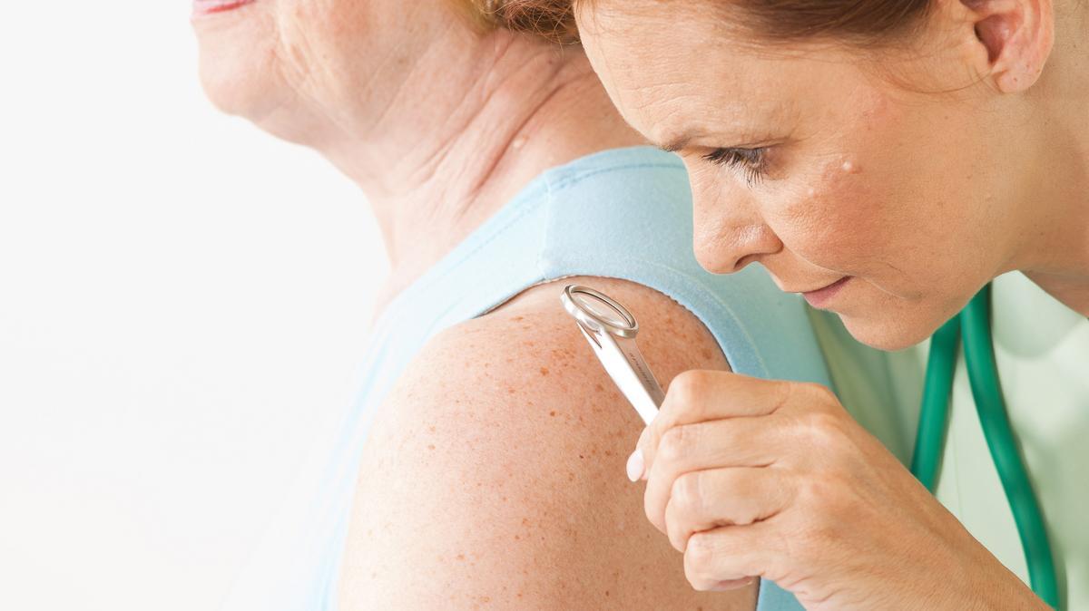 pikkelysömör és pikkelysömör ízületi gyulladás hogyan kell kezelni